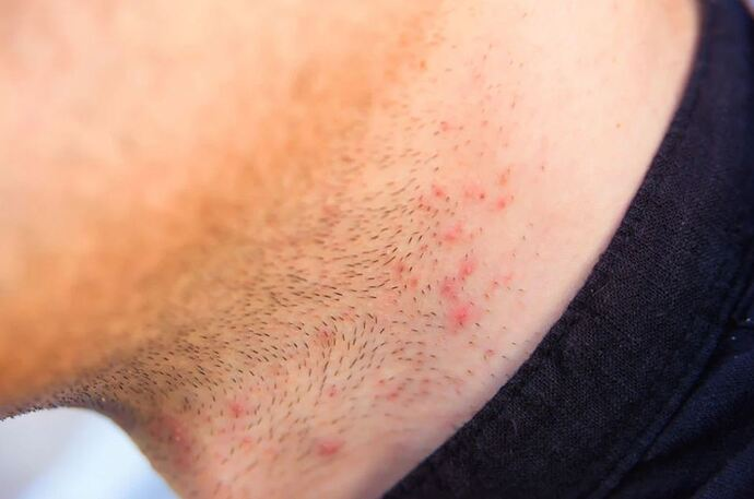 How-to-Get-Rid-of-Razor-Bumps