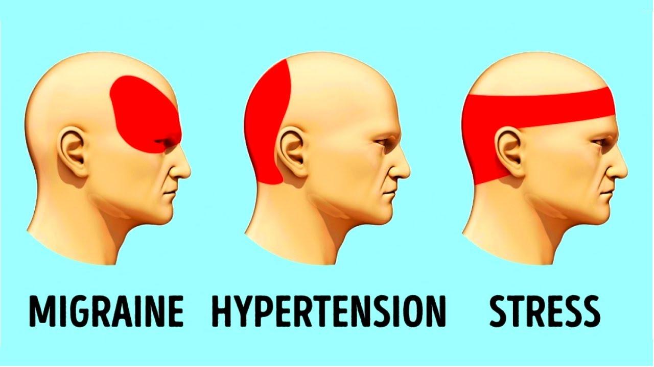 How-To-Get-Rid-of-a-Headache