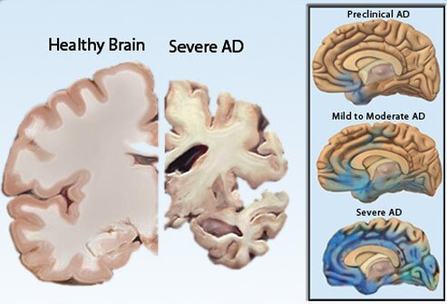 Picture of Alzheimer's Disease